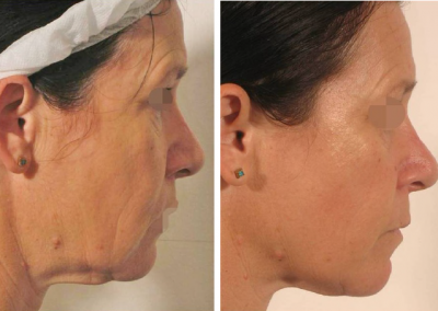 Lipofirm Pro face Blift